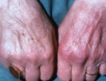 acrodermatitis-chronica-atrophicans-1