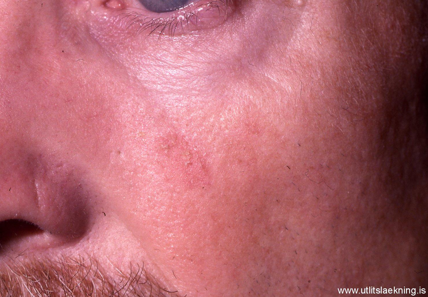 Actinic Keratosis (AK) - SkinCancer.org