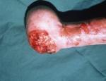 epidermolysis-bullosa-dystrophica-1