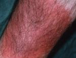 erythema-chonicum-migrans-3