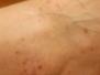 Flatskæningur (lichen planus)