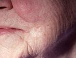 grunnfrumukrabbamein-af-morphea-ger-morpheaform-basal-cell-carcinoma