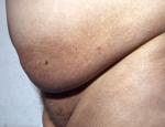 husortnun-melanosis-vegna-myrarkoldu-malaria-og-raormasyki-filariasis
