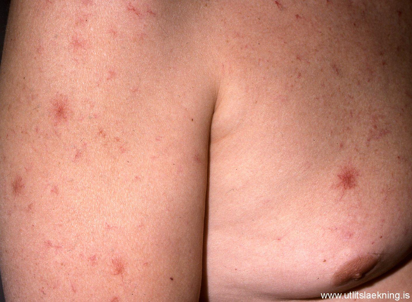 Nevus Anemicus Photos - Dermatology Education