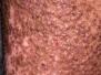 Mýlildisskæningur (lichen amyloidosis)
