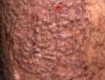 lichen-amyloidosus-vi