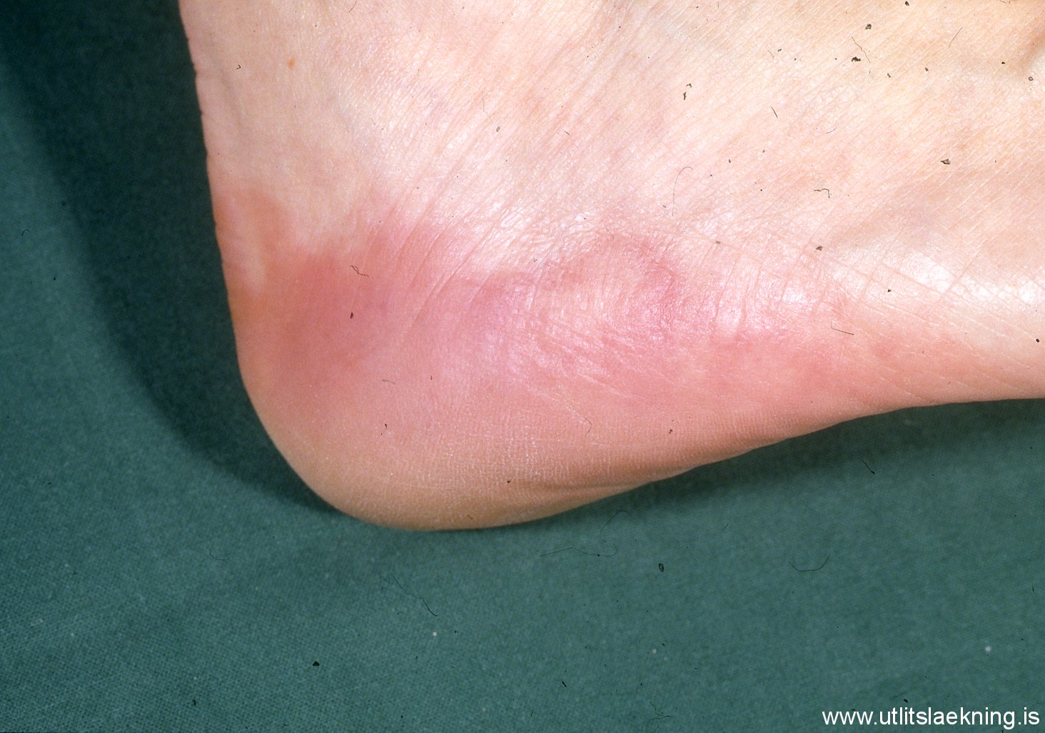 Photo Quiz: Foot Bumps: Now You See Them, Now You Don't ...